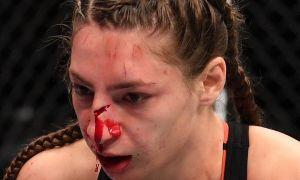 UFC гўзалининг бурни синмаган! (фото)