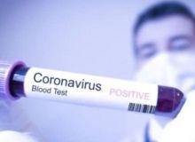 Жезушда коронавирус аниқланди