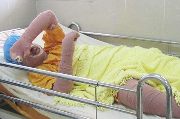 1-female-football-fan-in-iran-dies-in-hospital-from-burns